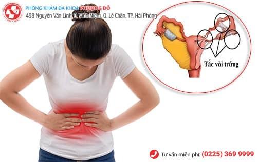 Đau bụng triệu chứng của tắc vòi trứng