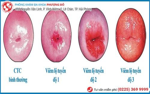 Triệu chứng viêm lộ tuyến cổ tử cung ba cấp độ