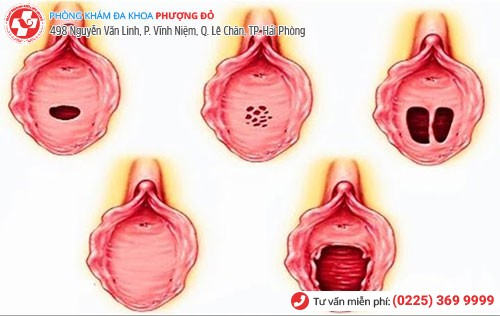 Cấu tạo sinh học màng trinh nữ giới