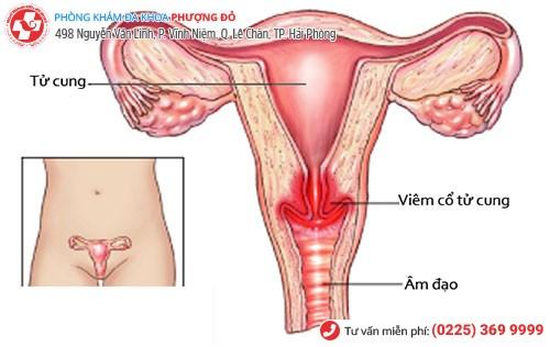 Hình ảnh viêm cổ tử cung
