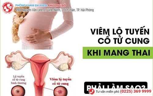 viêm lộ tuyến khi mang thai