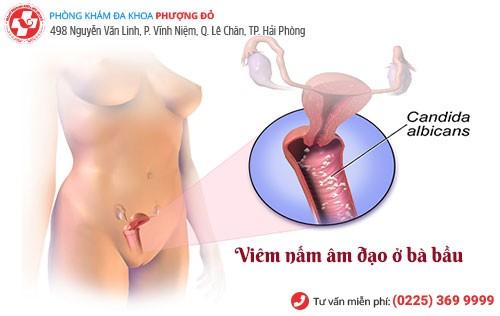 Viêm nhiễm nấm âm đạo khi mang thai