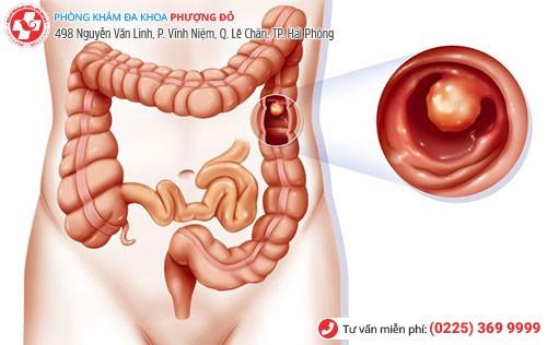 bệnh polyp hậu môn