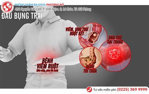 Đau bụng bên trái do viêm đại tràng
