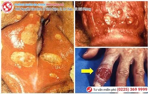 Triệu chứng của bệnh hạ cam