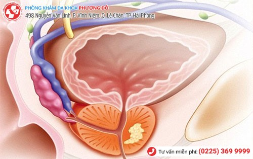 Hình ảnh viêm tuyến tiền liệt ở nam giới